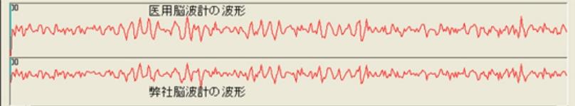 脳波計比較